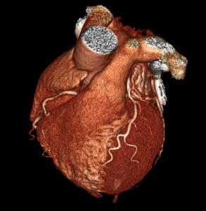 Cardiac CT 3D scan