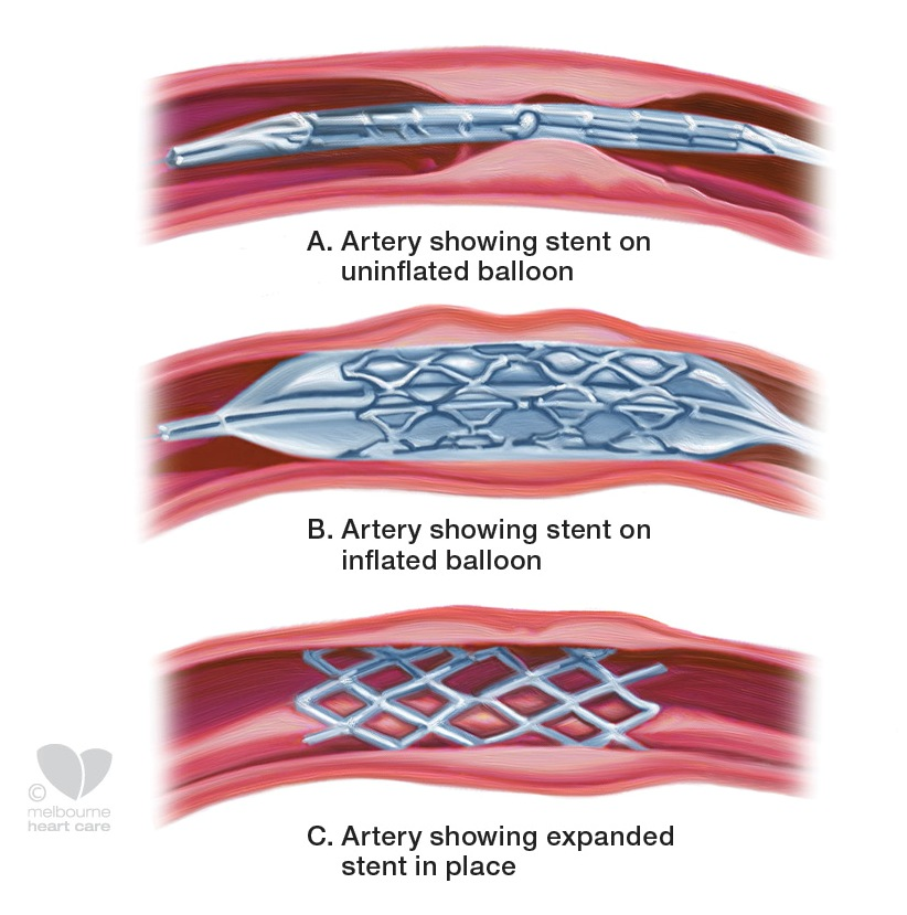diagram of heart stent images how to guide and refrence